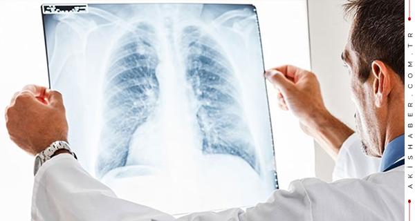 Her Gün 65 Kişiye Akciğer Kanseri Tanısı
