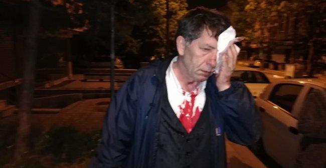 Yeniçağ Yazarı Demirağ'a Çirkin Saldırı