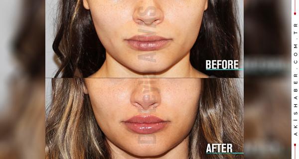 İnce, hacimsiz ve zayıf estetiğe sahip üst dudakların tek çaresi dudak dolgusu değil, kalıcı kurtuluşunuz Lip Lift operasyonudur...